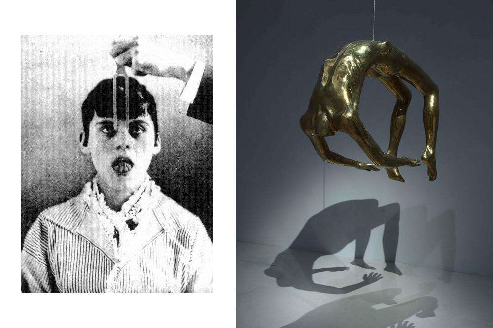 """Photo d'Augustine, l'une de ses célèbres patientes """"hystériques"""" ; """"L'arc de l'hystérie"""", sculpture de Louise Bourgeois"""